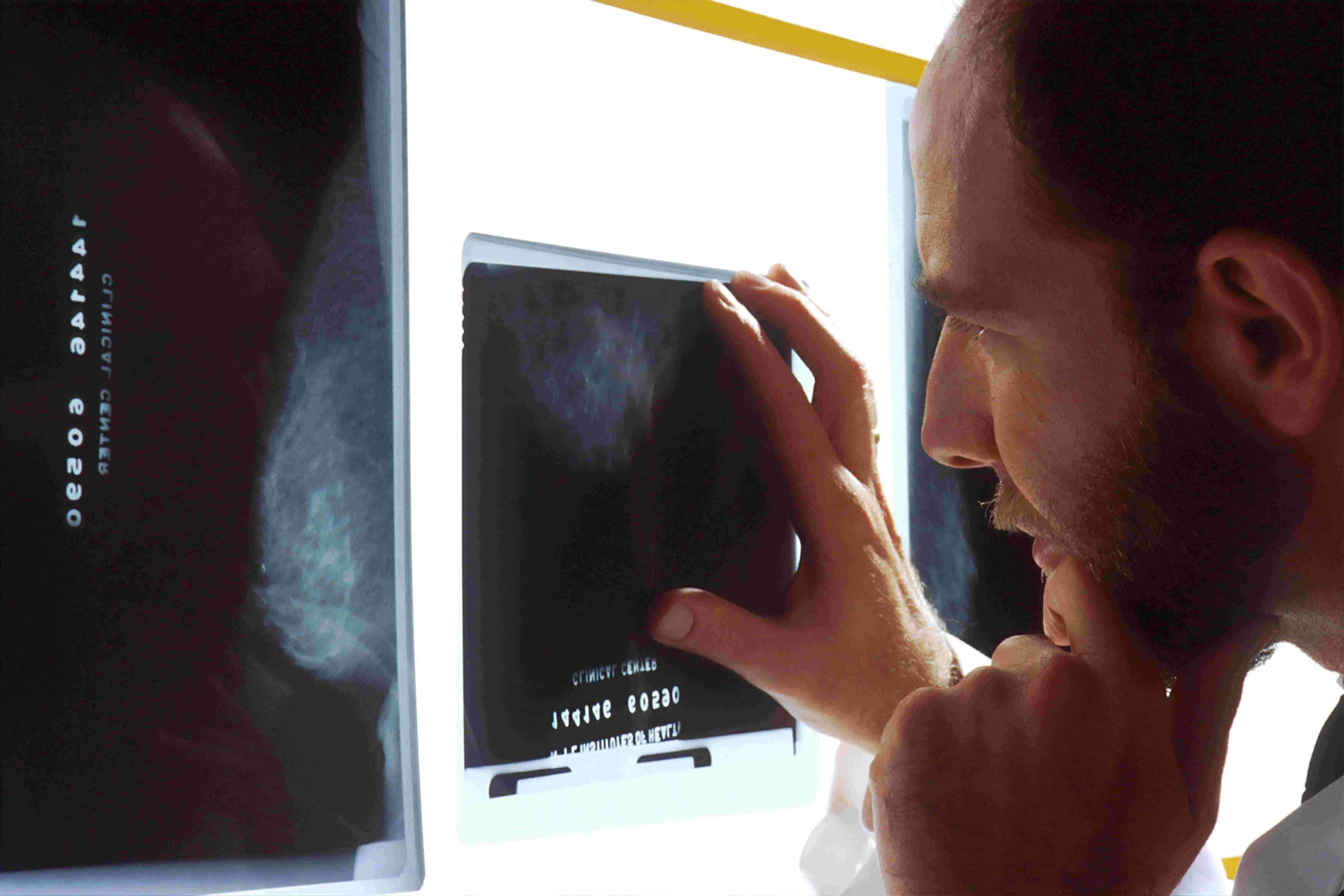 Teknik i Radiologjisë